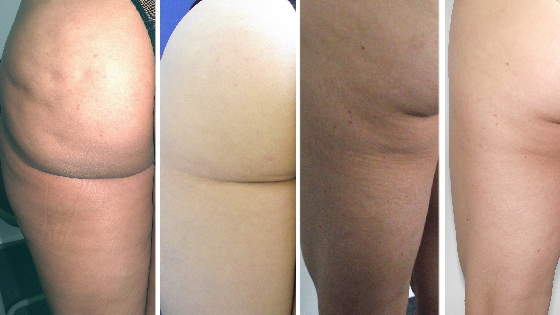 Before and after cellulite.png
