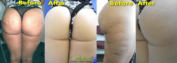 Cellulite 2.jpg