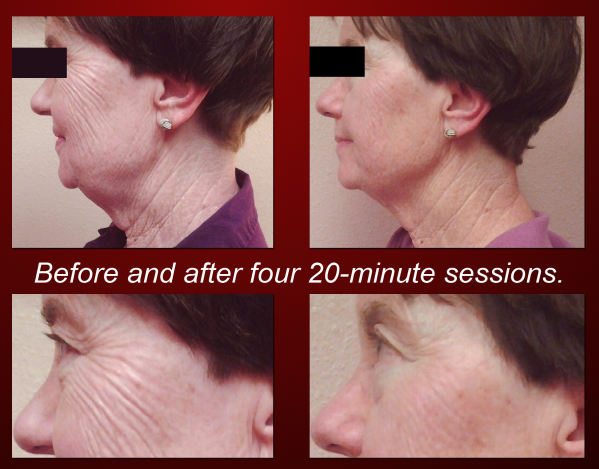 Non Invasive Facelift.png