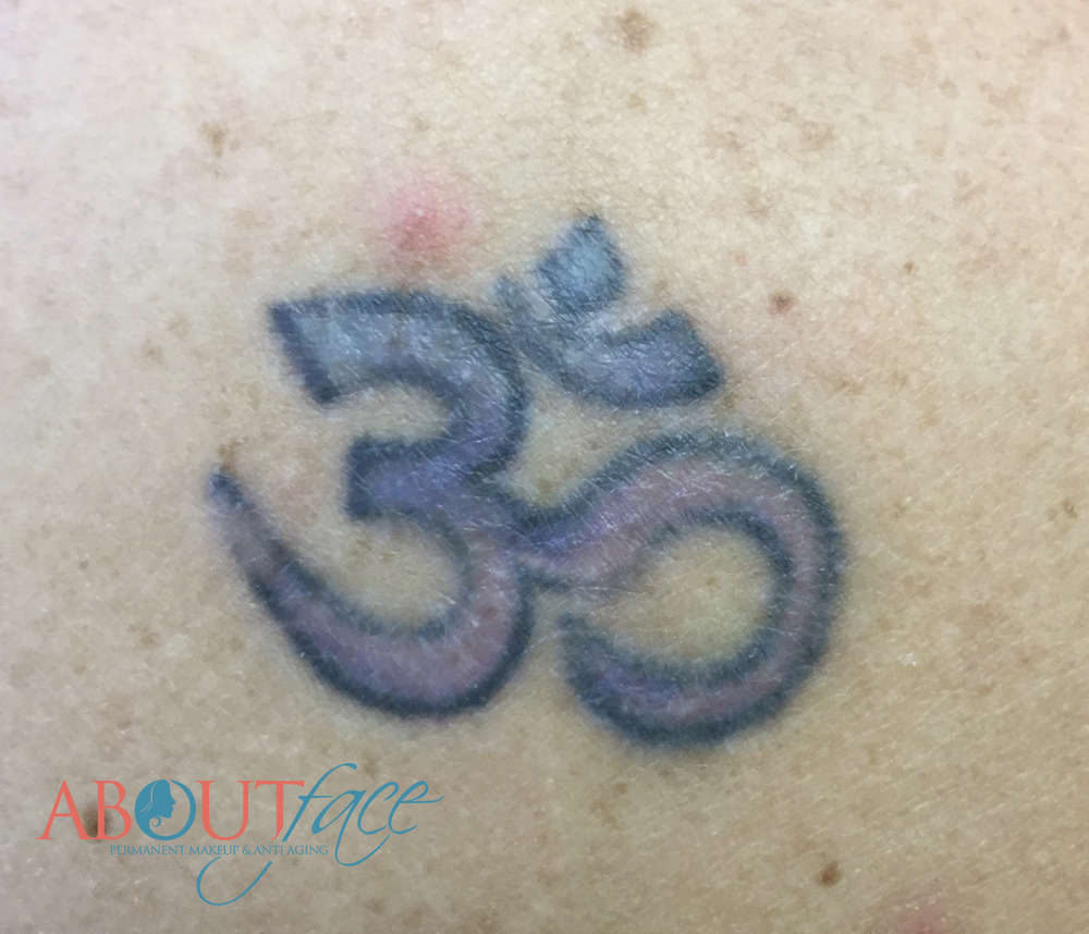 The result is a lighter version of the original tattoo. (This photo was taken after the first treatment of the entire tattoo was treated and now healed.) Notice the areas where the color has already been almost completely removed.