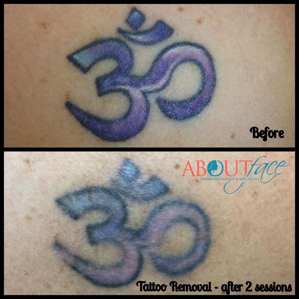 tattoo removal3.jpg