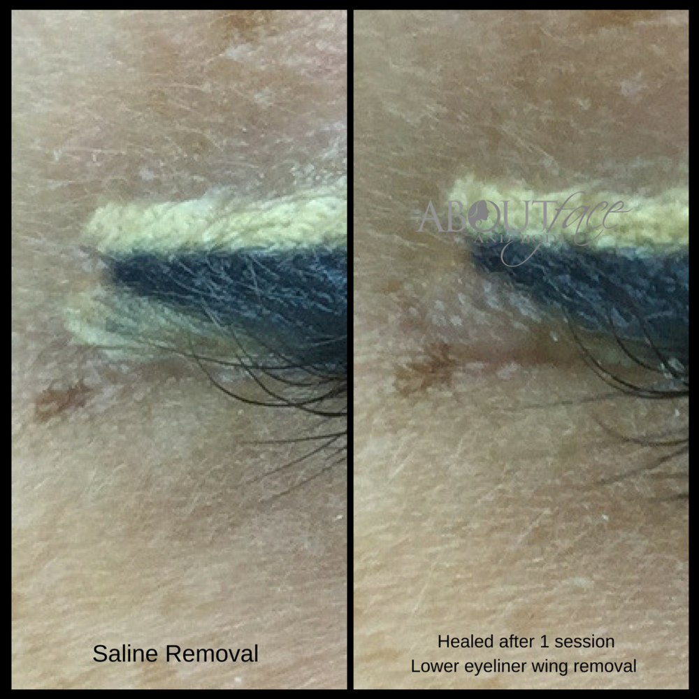 Eyeliner wing removal (1).png