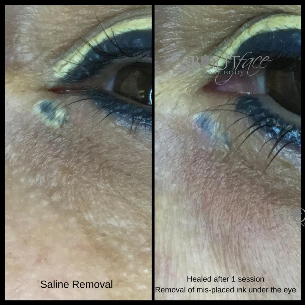 Eyeliner wing removal (2).png
