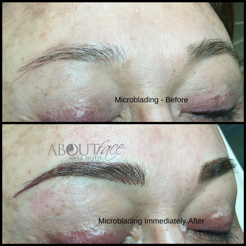 Microblading - Butler.png