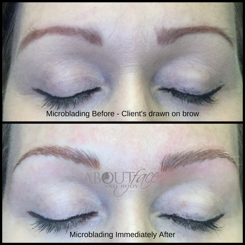 Microblading - McCosker.png