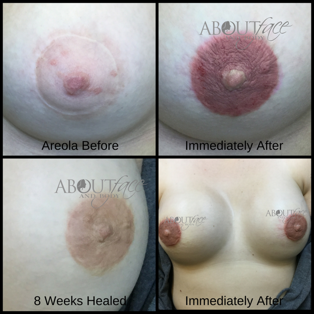 Areola - Nielsen.png