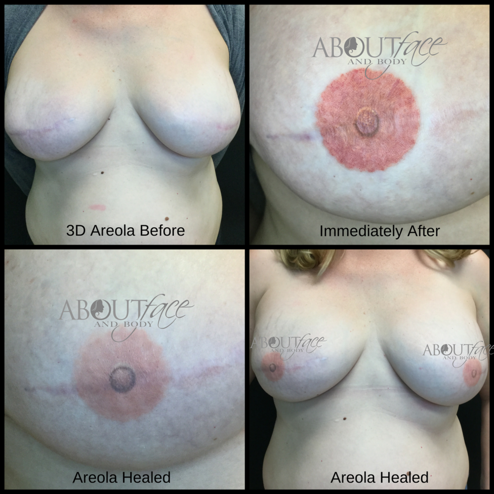 Areola - Hodge.png