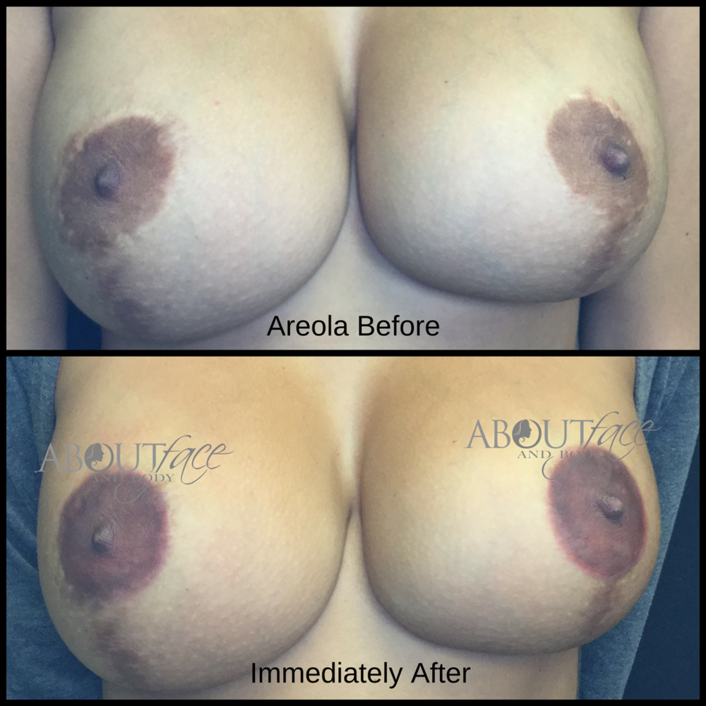 Areola - Torres.png