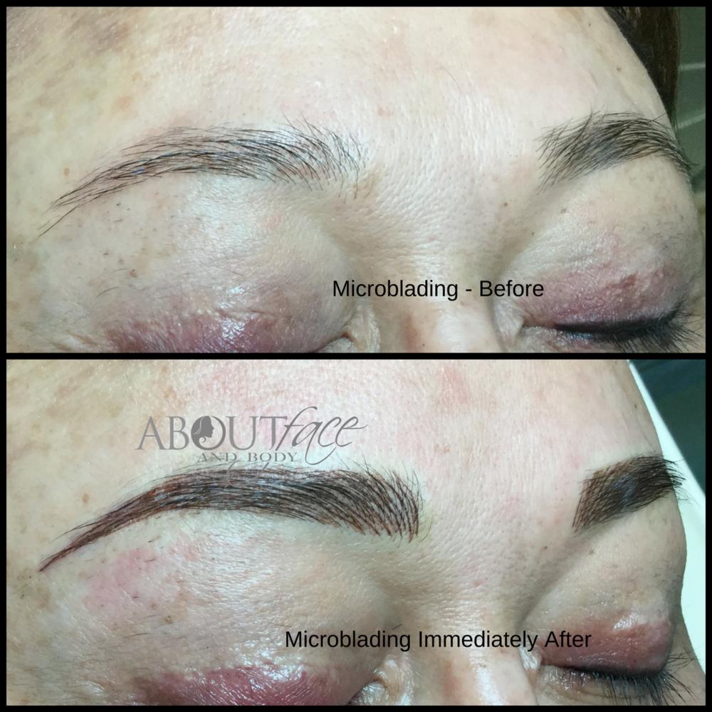 Microblading - Eyebrows