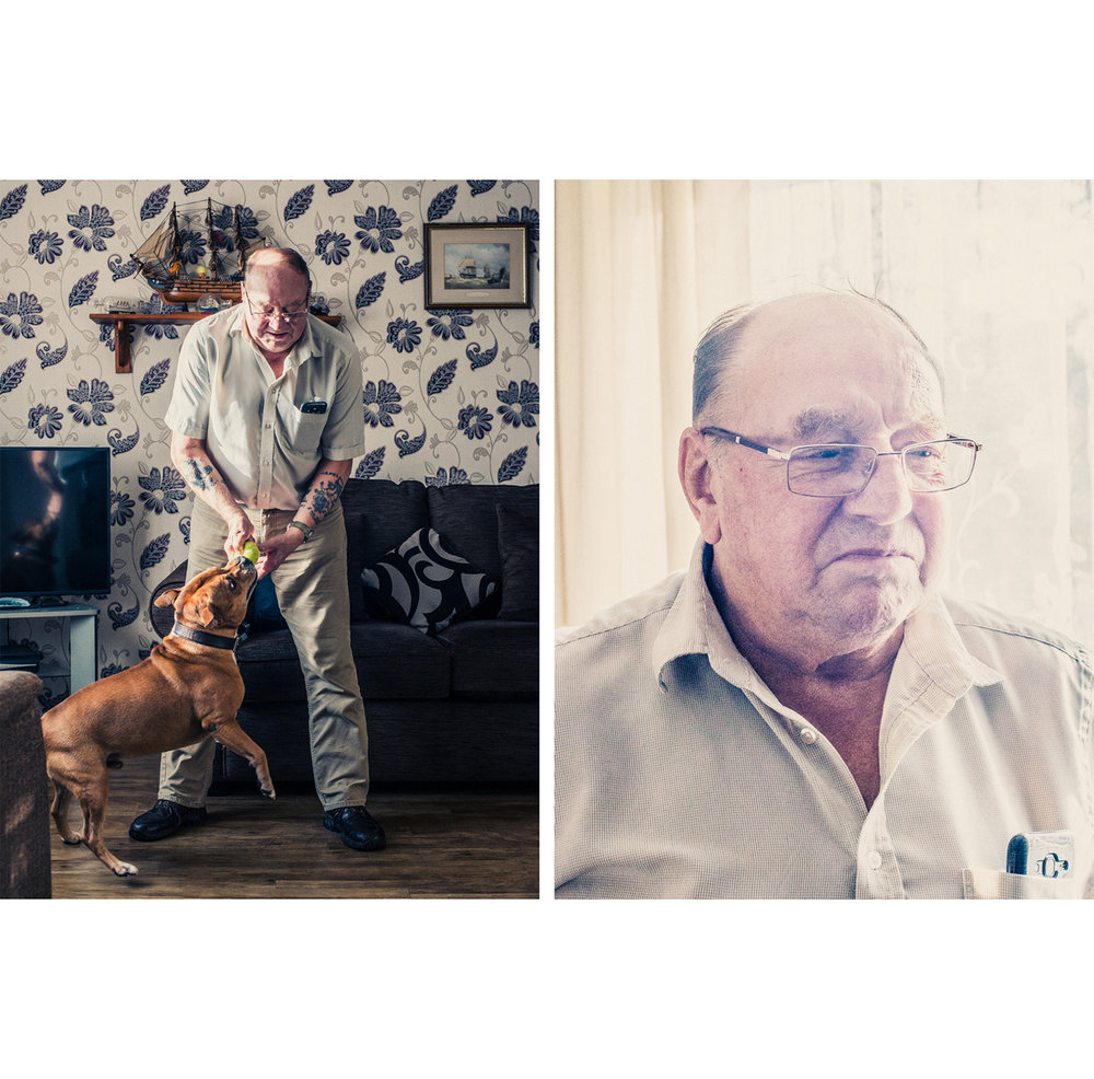Protstate cancer patient Robert Boulton at his home in Yate, England, for The New York Times.
