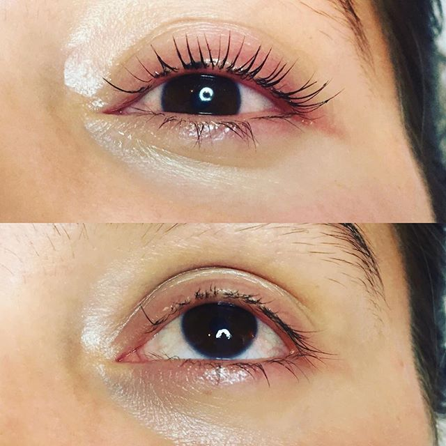 I am so eager to share this results from Yumi lashes keratin lash lift. My client came to keratin lash lift hoping to fix results from removing her lash extensions. Before and after pictures are telling the story. #yumilashes #yumisf #skinnovation #eyelashes #eyelashesonpoint #beauty #naturallashes #keratinlashlift #lashlift #lashes #esthetician #estheticianlife