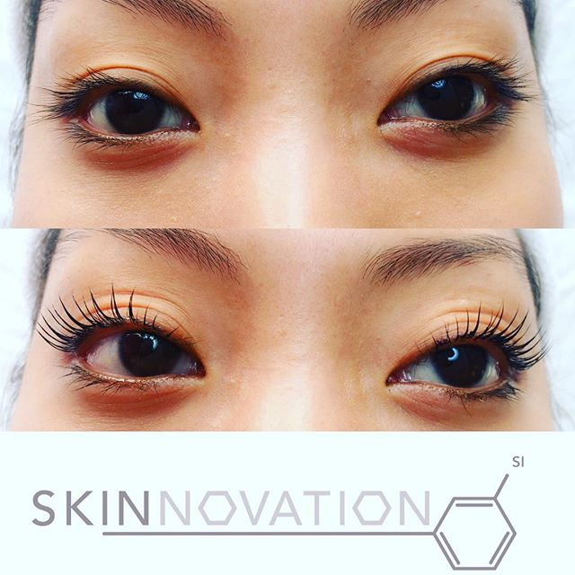 Perfect way to start you Saturday! Natural lash enhancement treatment 😍 keratin lash lift from Yumi lashes! #lashlifting #keratinlashlift #keratintreatment #eyelashes #naturalbeauty #pefectlashes