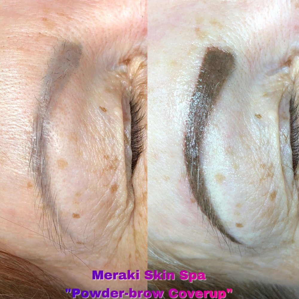 meridian Idaho permanent makeup coverup alt text