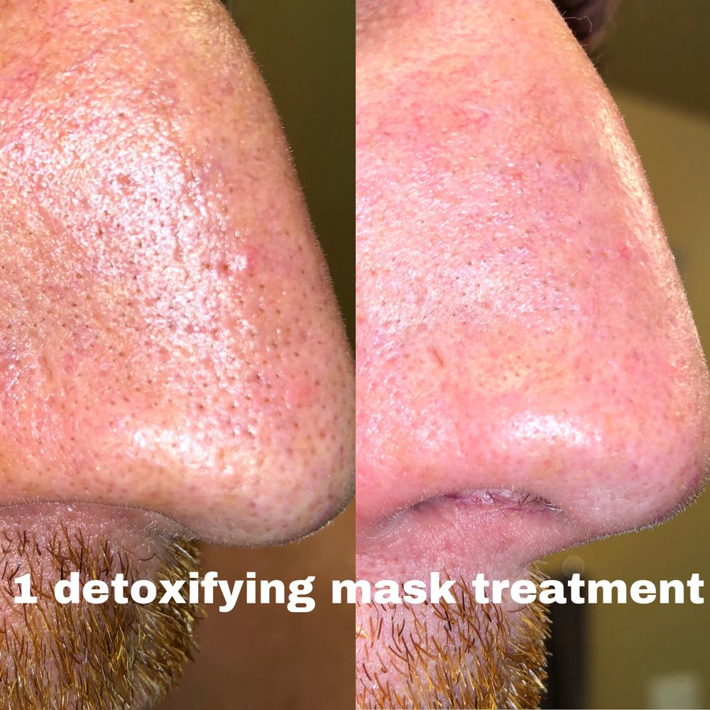 detox facial treatment alt text