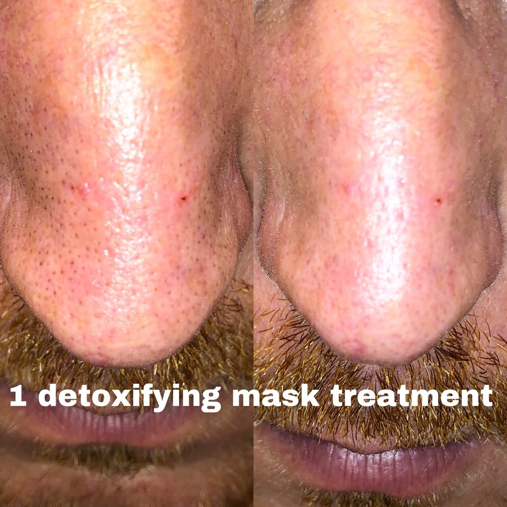 detox facial treatment-acne treatment alt text