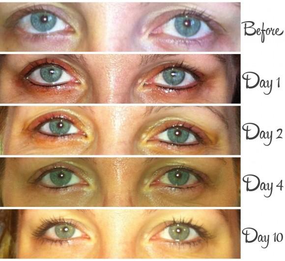 alt text permanent eyeliner healing process, permanent makeup