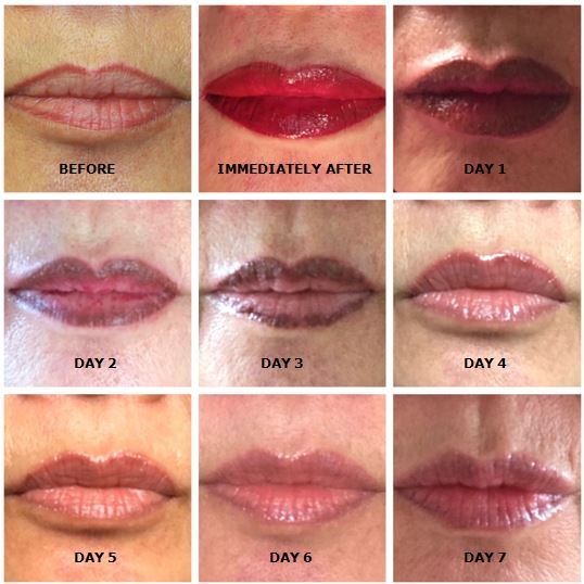 alt text permanent lip tattooing, permanent cosmetics