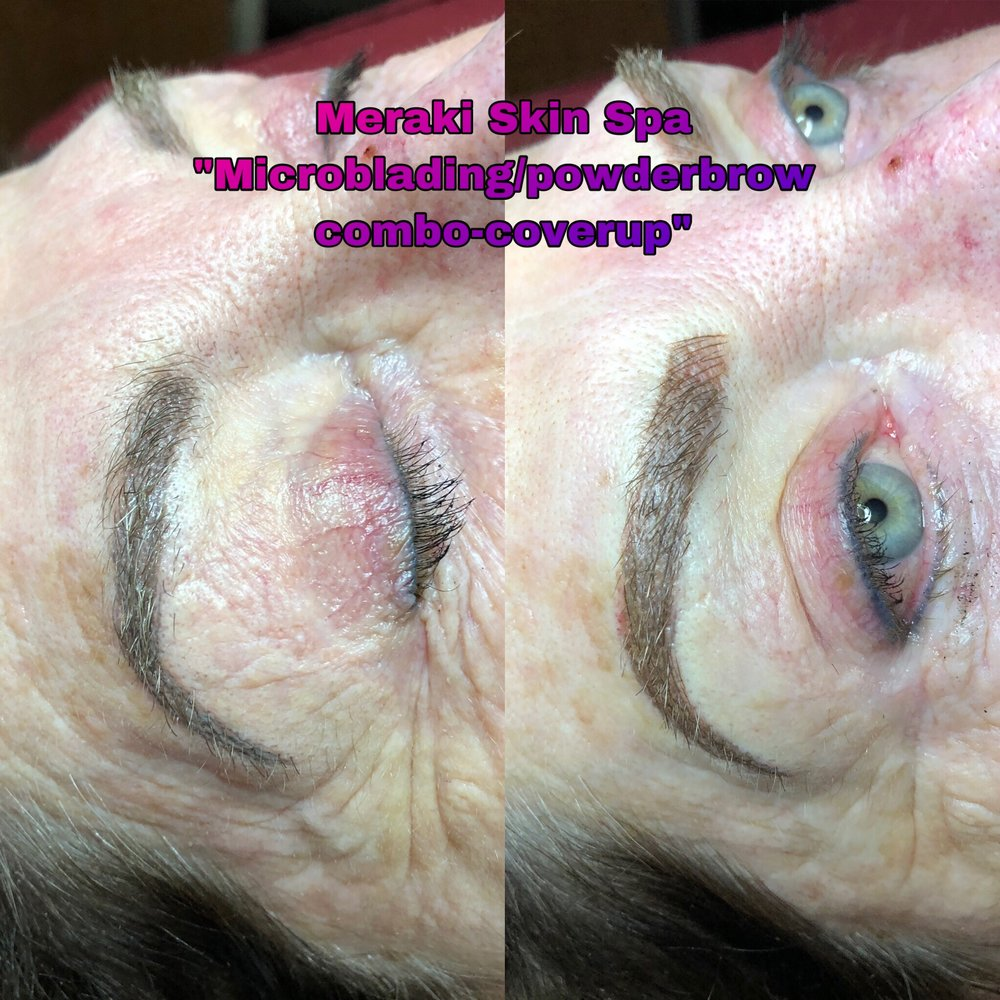 3 year old coverup, permanent eyebrow tattooing, microblading-powderbrow combo