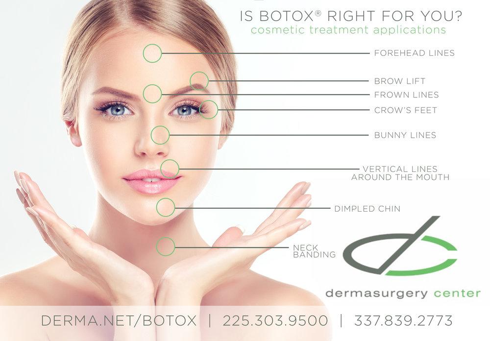 Botox Uses Infographic