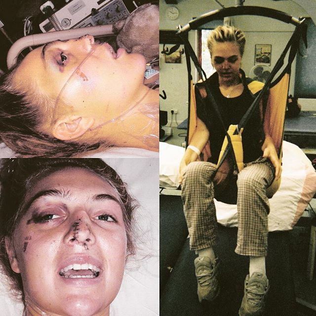 Fifteen years ago I was paralysed in a car crash. I had to undergo hours of operations both on my spine and face and was in intensive care and rehabilitation at The Royal National Orthopaedic Hospital in London for 3 months. I had round the clock care, world class #physiotherapists and #occupationaltherapists and #nurses that saved my life in more ways than I can explain. All for FREE thanks to our incredible #NHS. It's the 70th anniversary today. With its future very much unknown, just wanted to give thanks and hope that we can #savethenhsfromprivatisation so if and when the worst happens, like me, you can be saved for free! #HAPPYBIRTHDAYNHS #SavetheNHS #HappyanniversaryNHS #RNOH #Sci #Crash #ValueLife
