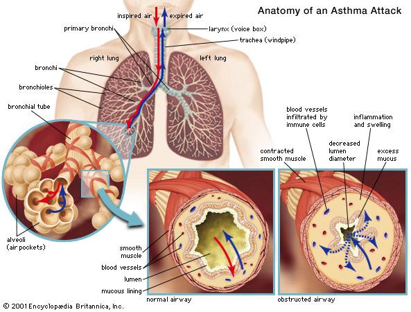 asthma-britannica.jpg