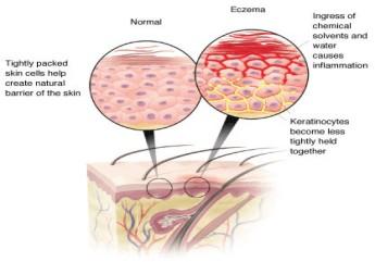 eczema-1.jpg