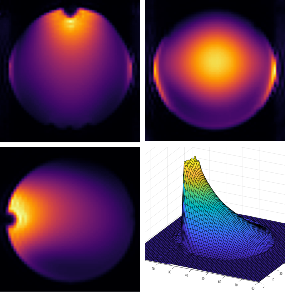 Construction of a Basic Radio Frequency Coil - We built a radio frequency receiver coil to acquire an image of a spherical phantom. February 1. Left: The resulting phantom images in the coronal, sagittal, and transverse plane from a 3D gradient echo sequence on the Phillips 7T. Right: The finished coil situated on top of the spherical phantom consisting of H2O, CuSO4 and NaCl.Team: C Hill, E Bluemke