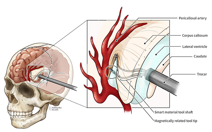 Figure caption: The smart material tool shaft features a two-pronged system that both grasps and cuts. The corpus callosum is then gently separated with the pericallosal artery marking the superior anatomical landmark.