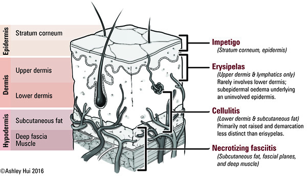 Chapter: DERMATOLOGY Figure caption:  Bacterial skin infections and their associated layers of dermis and/or epidermis.