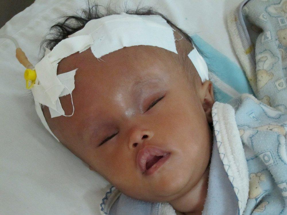 hydrocephalus 10.jpg