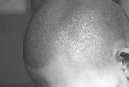 scalp -