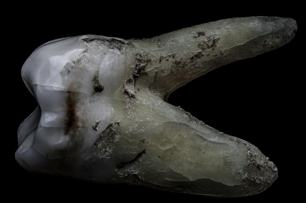 neal-auch-human-teeth-13.jpg