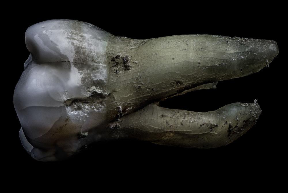 neal-auch-human-teeth-14.jpg