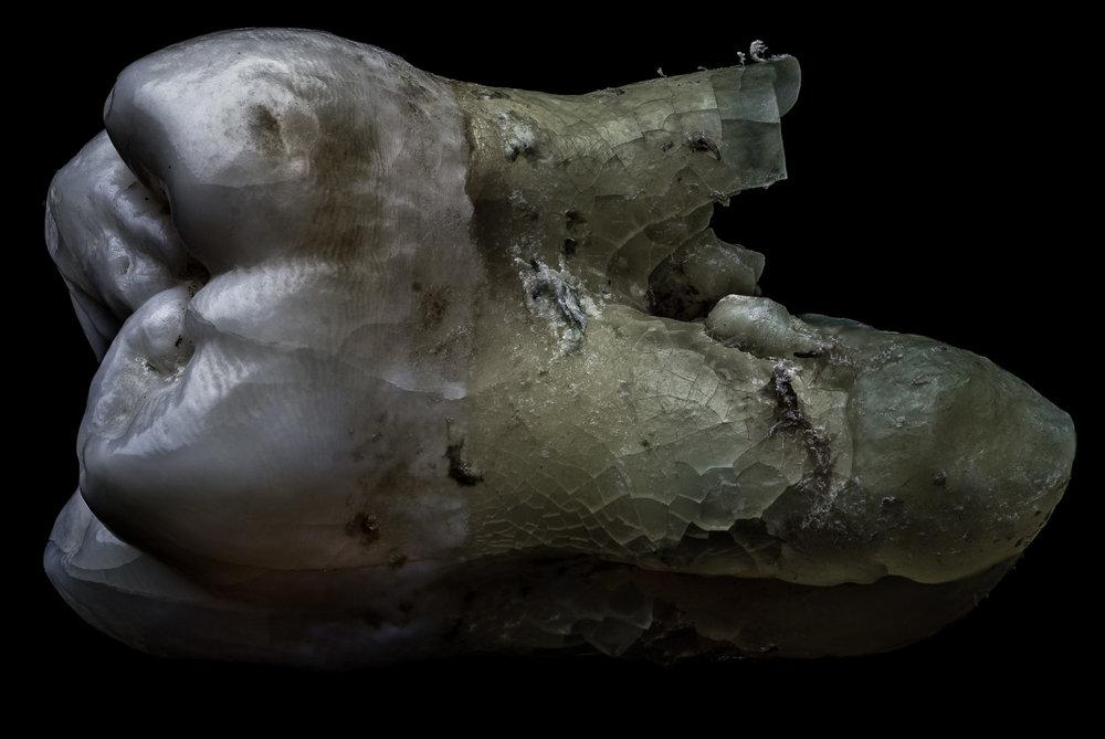 neal-auch-human-teeth-16.jpg
