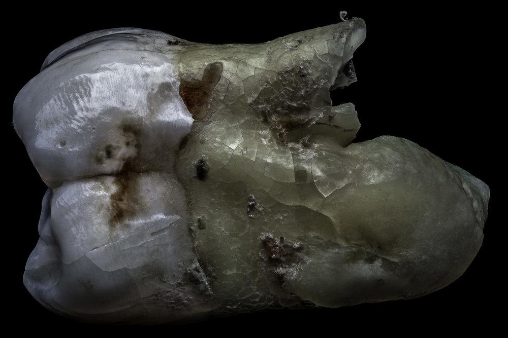 neal-auch-human-teeth-17.jpg