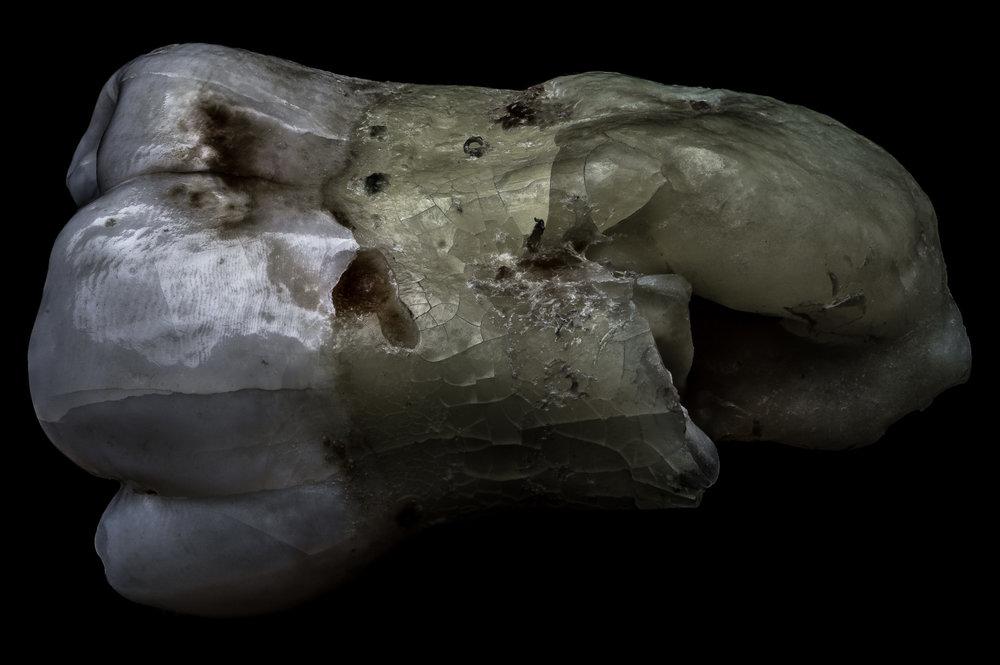 neal-auch-human-teeth-18.jpg