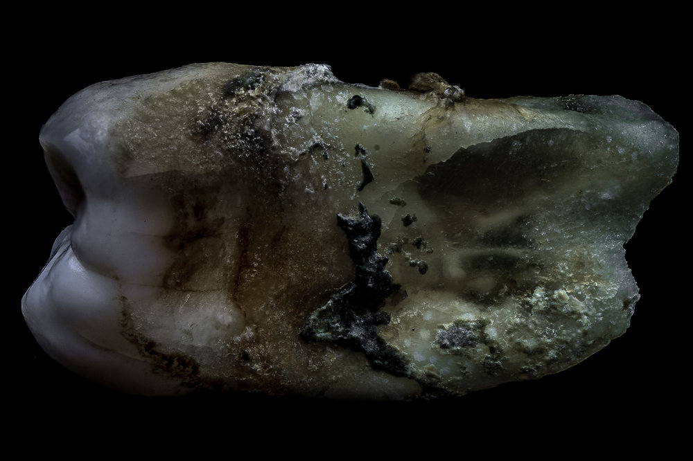 neal-auch-human-teeth-9.jpg