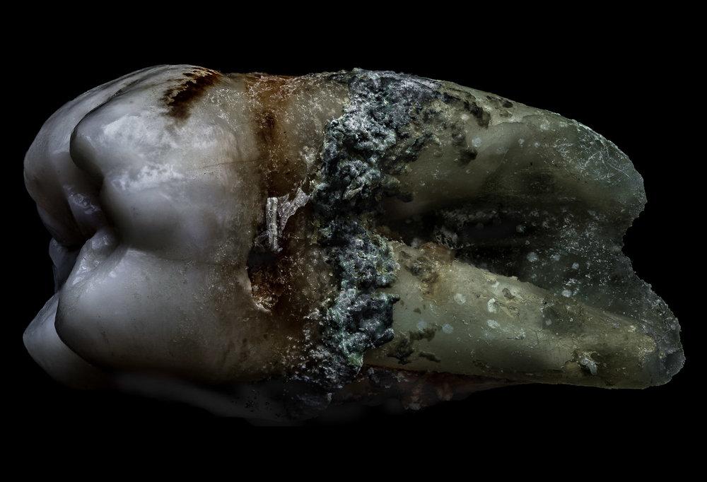 neal-auch-human-teeth-10.jpg