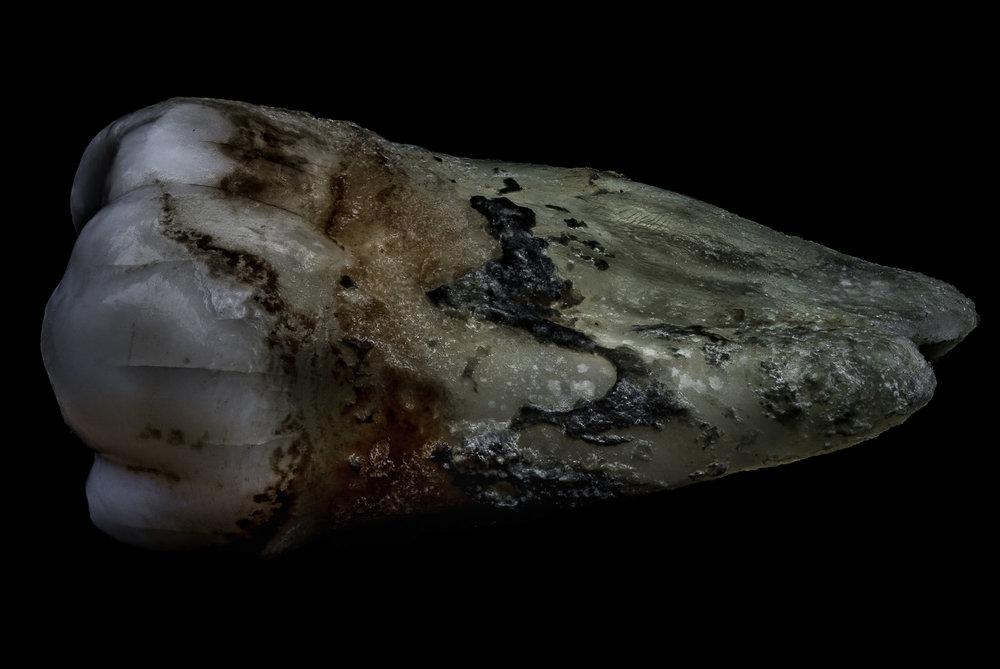 neal-auch-human-teeth-11.jpg