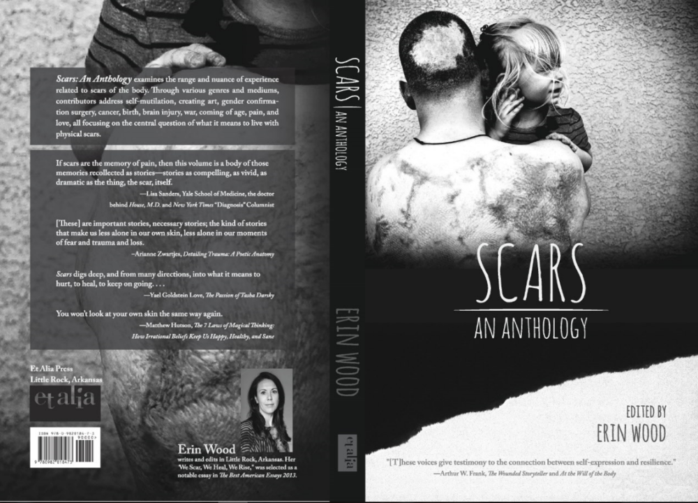 SCARS FRONT and BACK COVER FOR SITE.PNG