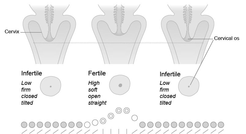 Avoiding pregnancy fertility uk the changes in the cervix can be recorded on the chart as shown in jos chart figure 8 the infertile cervix is represented by a solid black circle ccuart Choice Image