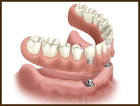Implant and Dentures - Implants can be used to make existing or new dentures fit securely to your mouth. The dentures simply clip into the implants and can be removed with ease when required.
