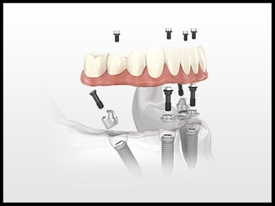 Fixed Implant Solutions - If a patient is suitable biologically, Implants can be a solution to complete transform a removable denture into an Implant bridge that can be screwed into 4 or more dental implants.