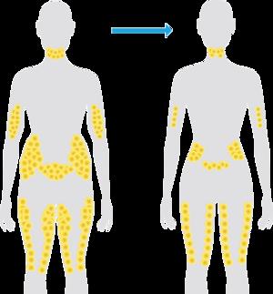 Fat cells after CoolSculpting treatment