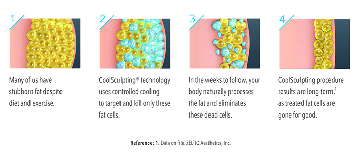 How-CoolSculpting-Works-11.jpg