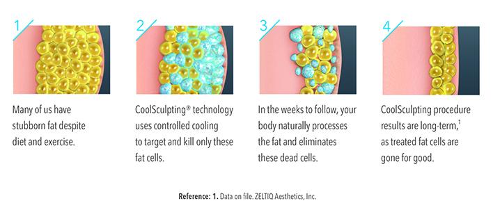 How-CoolSculpting-Works-11.jpg
