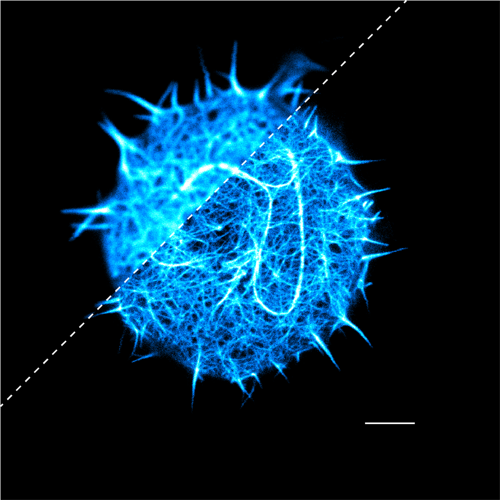 Confocal/3D-STED image of the actin cortex of T cell