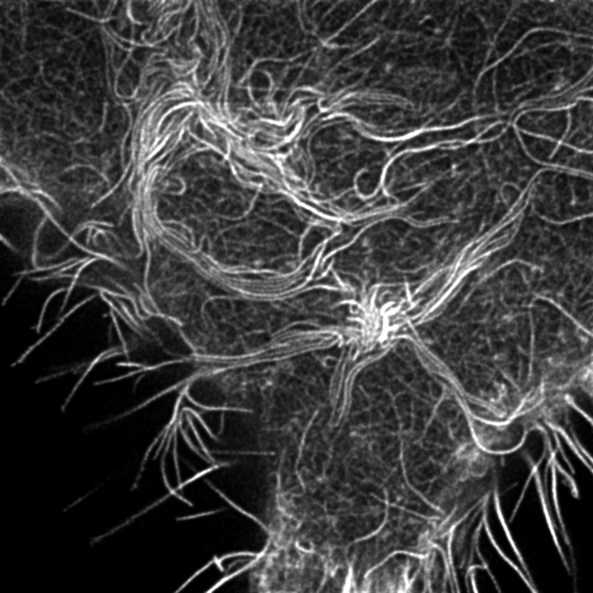 Actin bundle formation imaged by STED