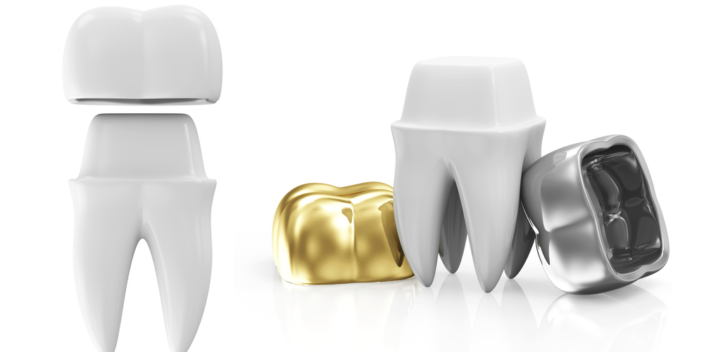 Different Types of Crowns