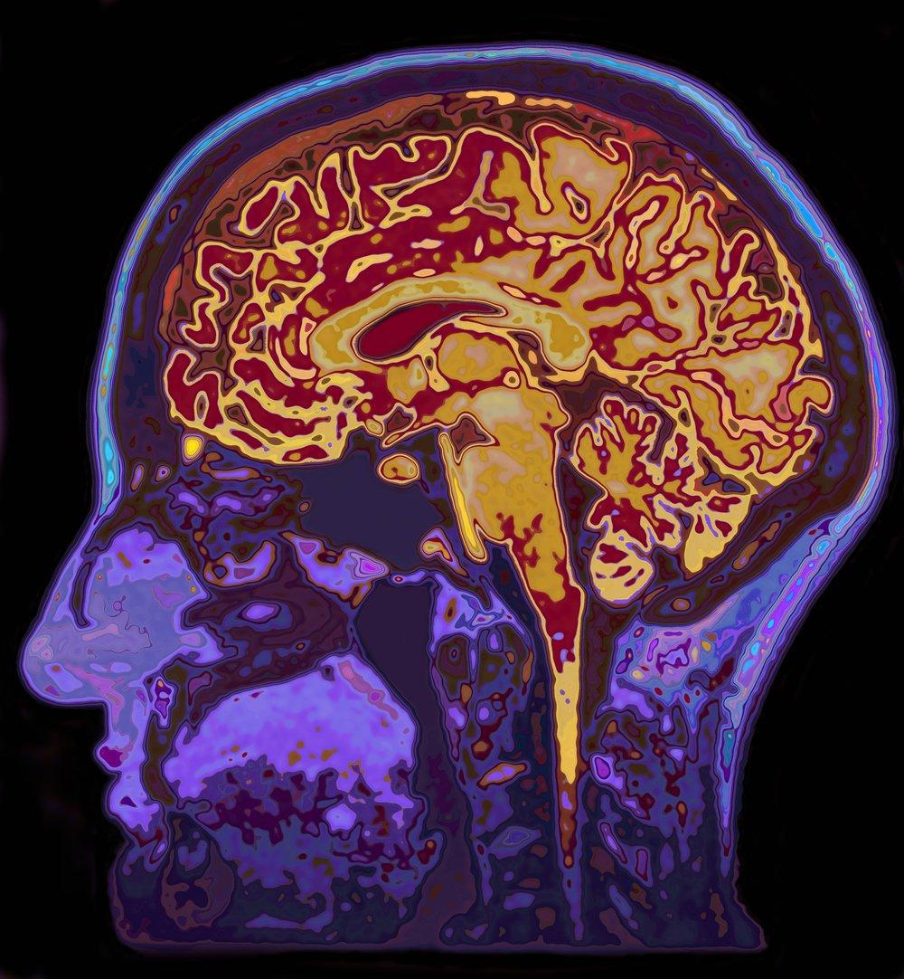 iStock brain.jpg